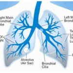 About cancer of the lung