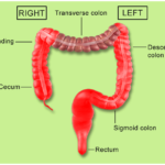 Cancer of the colon versus. rectal cancer: what's the difference?