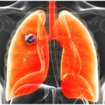 Cancer of the lung – radiation oncology