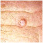 Characteristics of fast-growing melanomas identified
