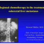 Concentrating on treating liver metastases