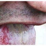 Dental thrush during chemotherapy