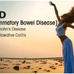 Faq's about colorectal cancer & ibd