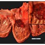 Heart tumors