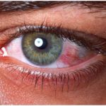 Hormone substitute therapy and dry eye syndrome