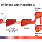 Liver cancer – hep