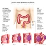 Management of cancer of the colon, by stage