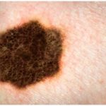 Melanoma: causes, signs and symptoms and coverings – medical news today