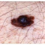 Melanoma guide: causes, signs and symptoms and treatments
