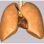 Treating non-small cell cancer of the lung
