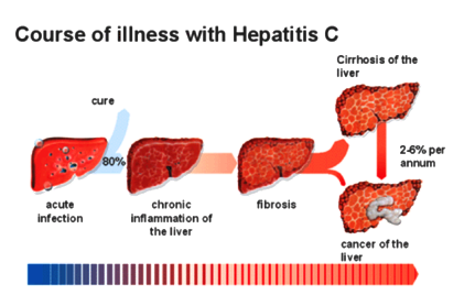 Liver cancer - hep Primary describes cancer that
