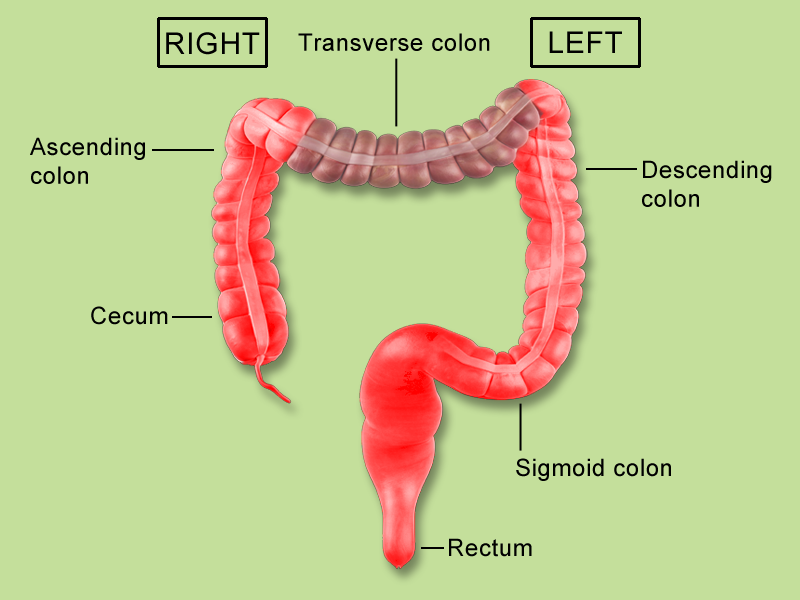 Cancer of the colon right & left signs and symptoms The stool can also