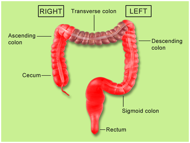 Cancer of the colon versus. rectal cancer: what's the difference? and rectal         cancer, frequently known