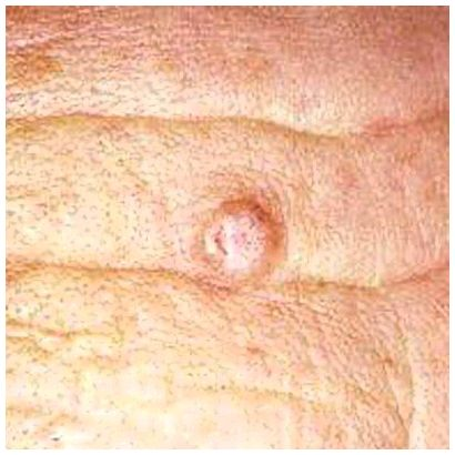 Characteristics of fast-growing melanomas identified more frequently present in people