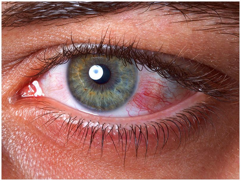 Hormone substitute therapy and dry eye syndrome with signs