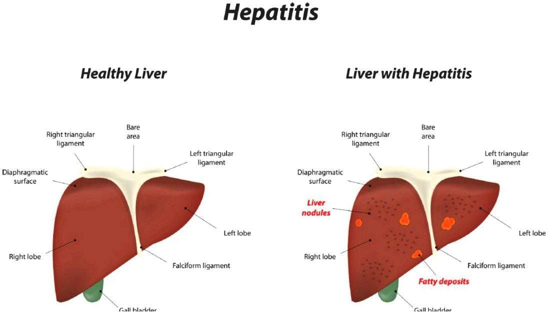 How hepatitis c results in liver cancer is what