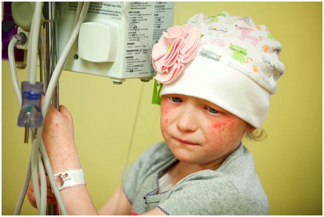Pediatric melanoma fair skin