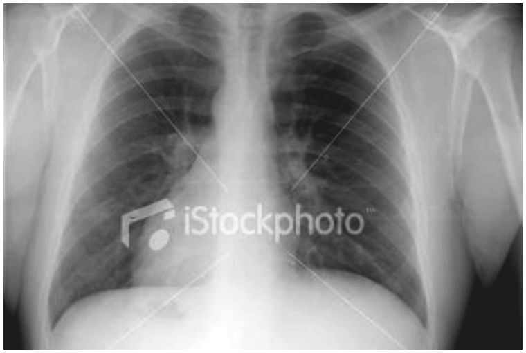 Small cell cancer of the lung and asbestos - signs and symptoms & prognosis SCLC can spread rapidly