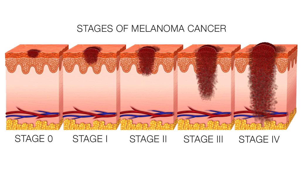 Signs and symptoms and photographs of stage 4 melanoma tumor, however the cancer can