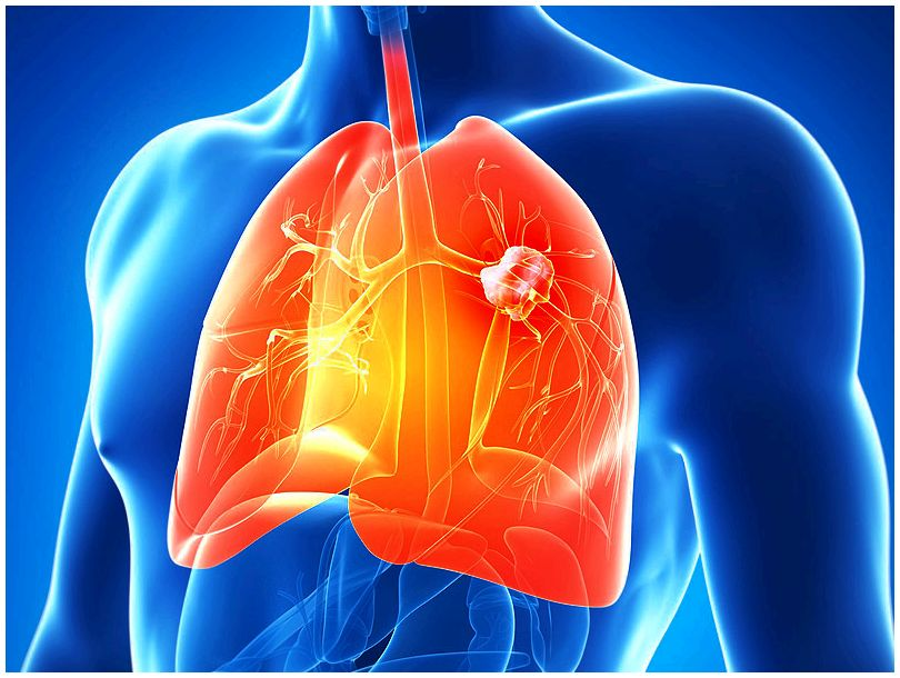 Squamous non-small cell cancer of the lung Worldwide Agency for Research