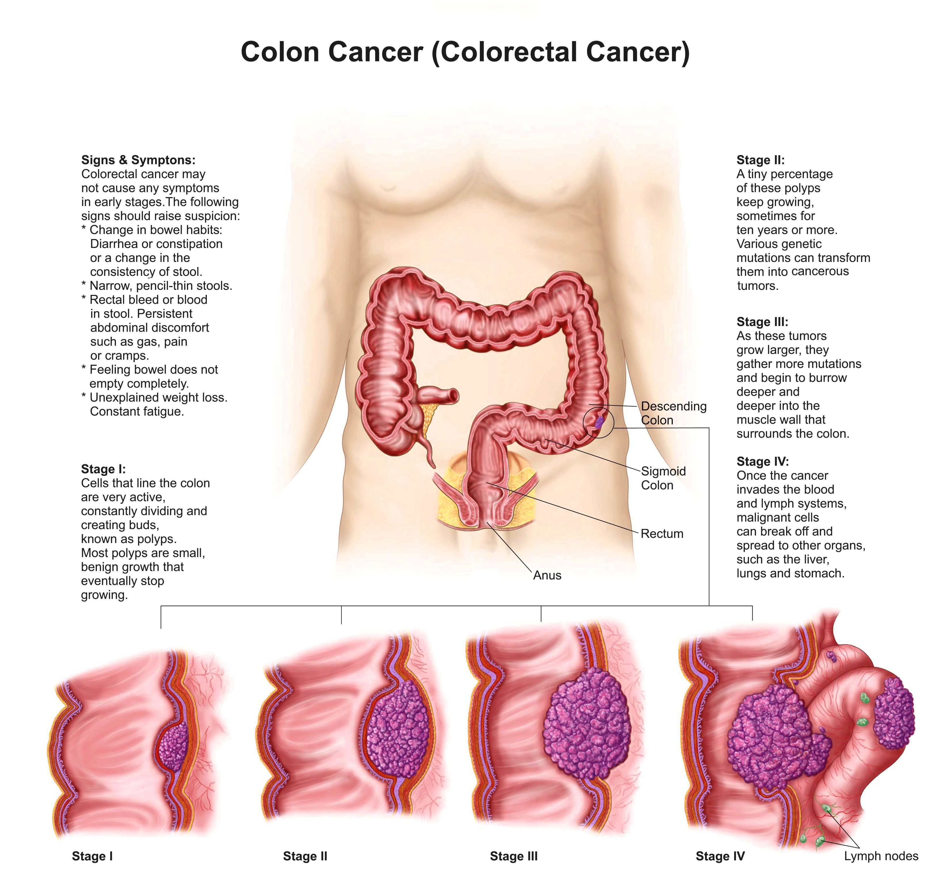 Management of cancer of the colon, by stage Recurrent cancers can frequently be
