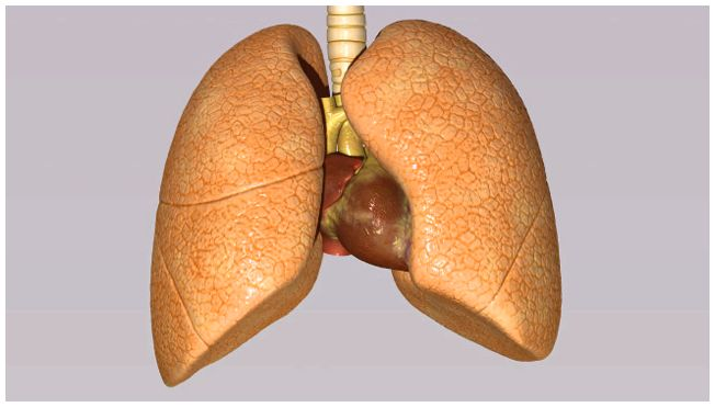 Treating non-small cell cancer of the lung enhance your quality of