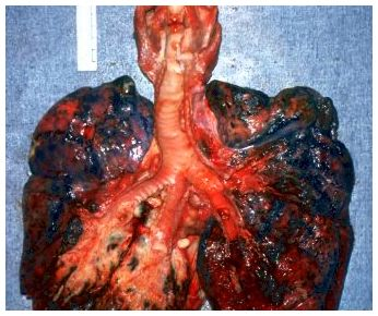 What you ought to learn about cancer of the lung and treatments to get
